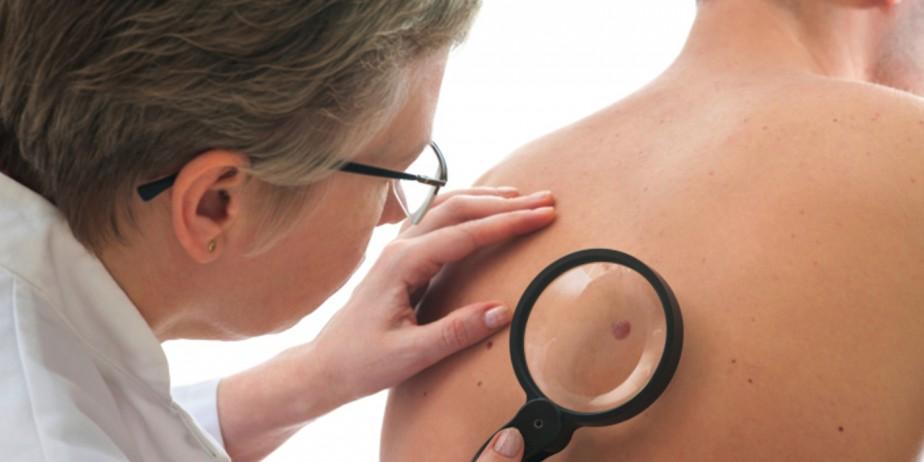 skin-cancer-924x462